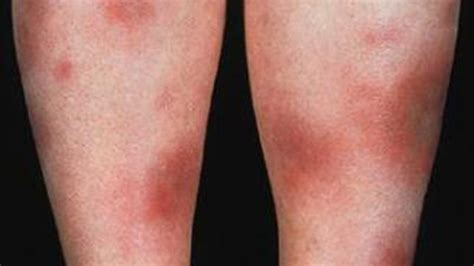 Dermatoses: Causes, Treatments, and More