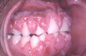 Flashcards Table on PD Mouth And Throat Pics